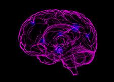 LICCE - Epilepsia